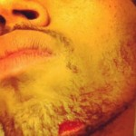 Chris Brown Bleeds After Fight With Drake